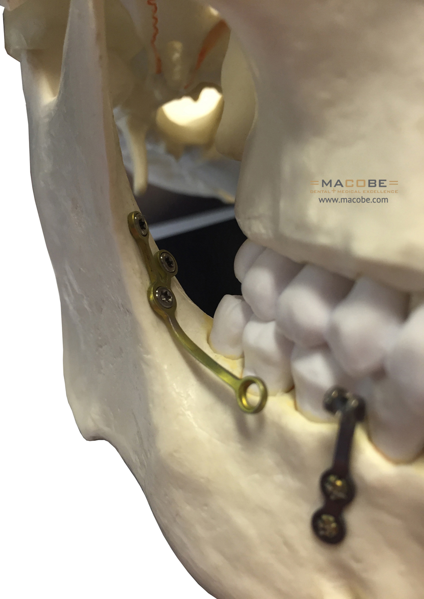 Alveolarplate Mand right